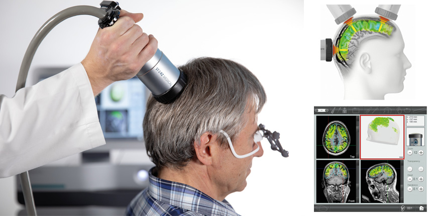 Breakthrough in Alzheimer's disease and dementia